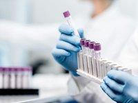 Кабмин Украины разрешил проведение экспресс-тестирования на антиген при въезде из Крыма и ОРДЛО