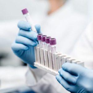 Совет ЕС одобрил взаимное признание странами союза тестов на COVID-19