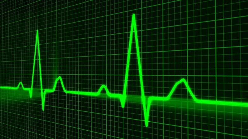 В Украине увеличивается количество пролеченных методом тромболизиса случаев инсульта – эксперты